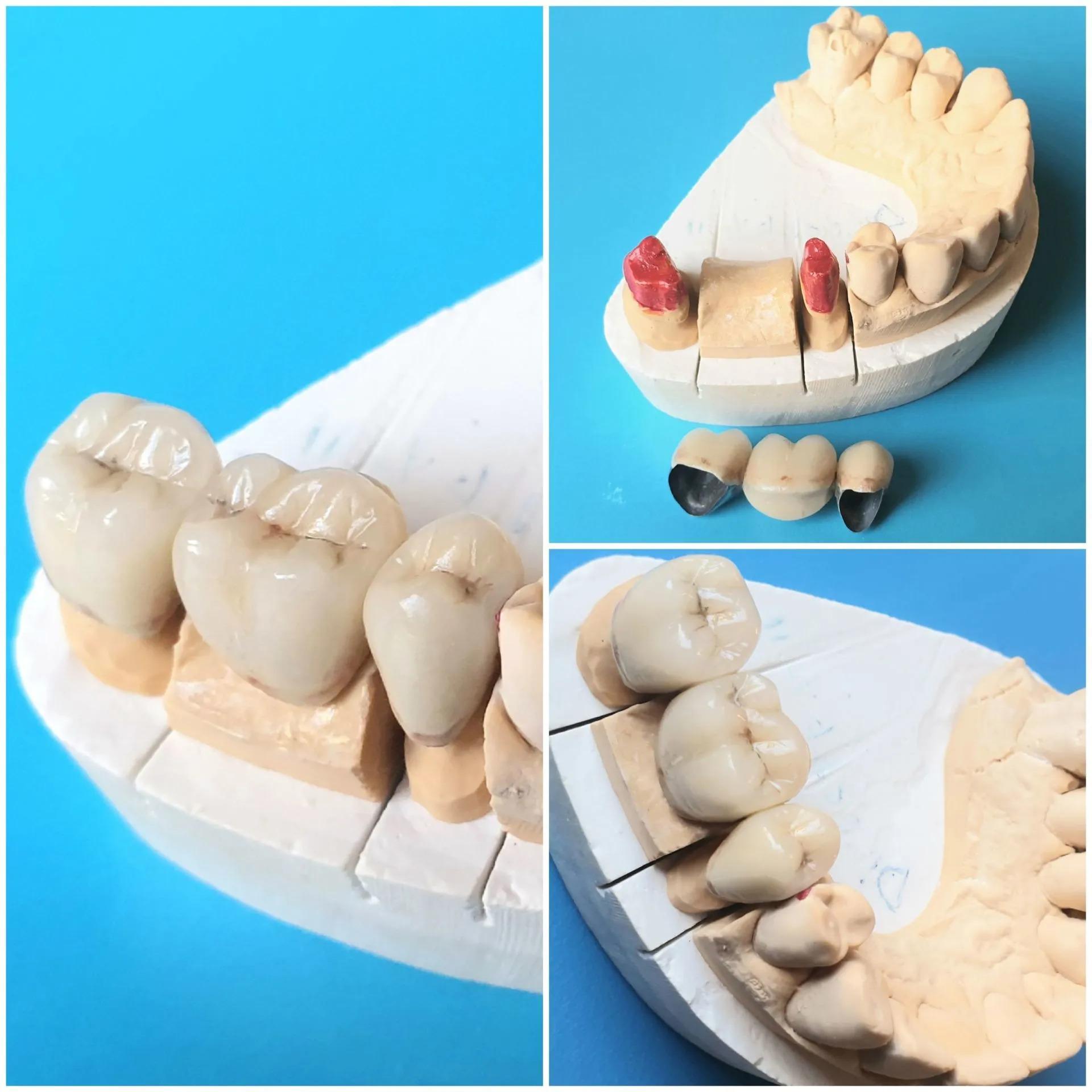 riparazione protesi dentarie roma prati
