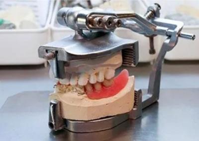 riparazioni protesi dentarie roma